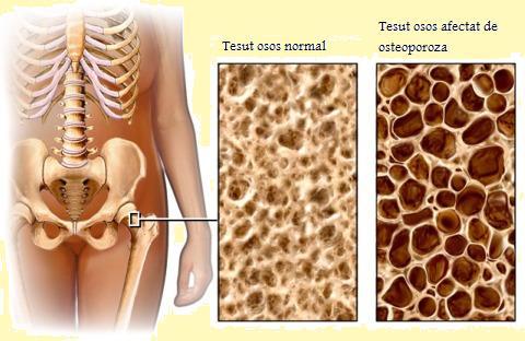 Osteoporoza apare atunci cand oasele pierd minerale, cum ar fi calciul,