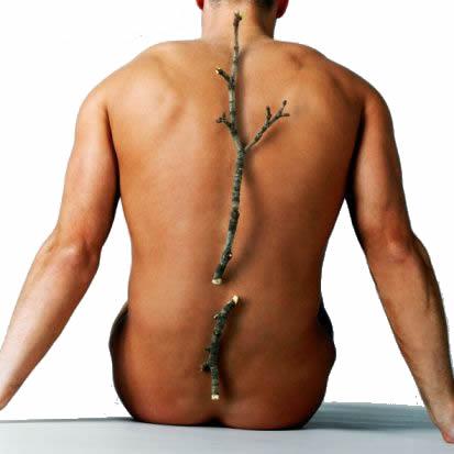 Incidenta fracturilor la barbati datorate osteoporozei este jumatate din cea de la femei, dar mortalitatea prin fractura de sold este dubla