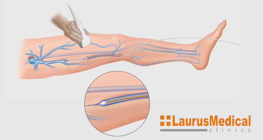 LaurusMedical - Tratament Varice Laser Endo-Venos