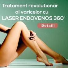 Tratamentul Laser al Varicelor