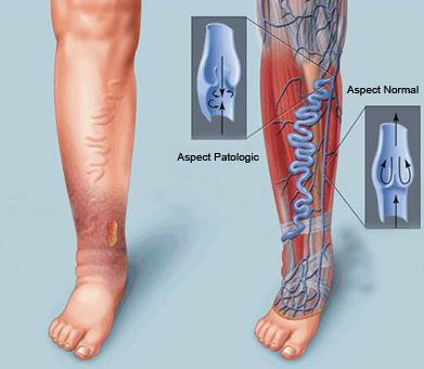 Venele sunt prevazute cu valve unidirectionale care sa impiedice refluxul sangelui