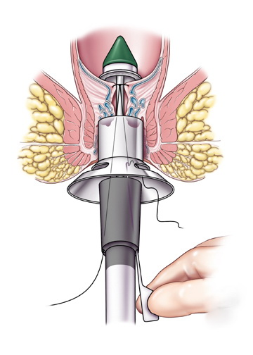 Metoda foloseste un dispozitiv circular de capsare pentru excizarea tesutului in exces de pe membrana mucoasei anale prolabate.