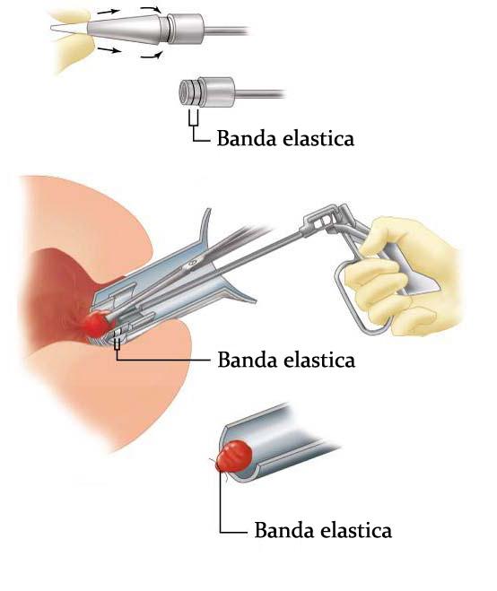 Hemoroidul este prins cu un instrument, iar un dispozitiv pozitioneaza inelul de cauciuc la baza hemoroidului