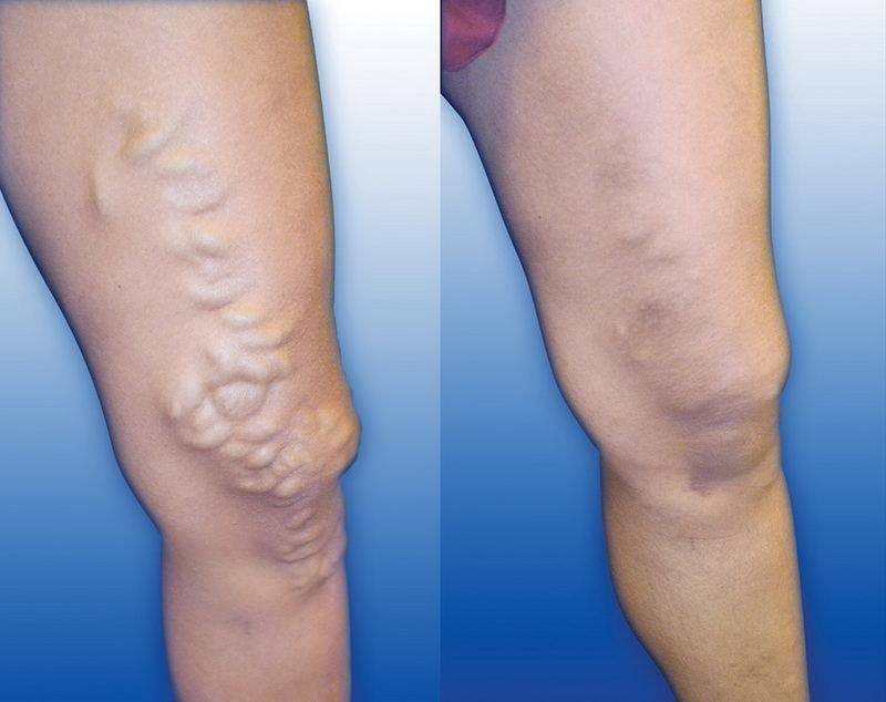 cum scapi de varicele din picioare medicamente pentru varice la picioare