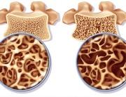 Analize-pentru-osteoporoza