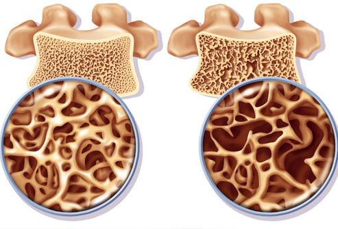 osteoporoza la coloana
