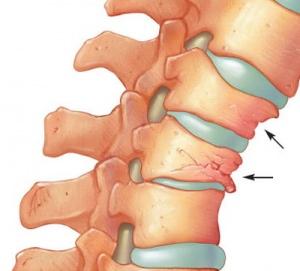 Atunci cand vertebrele sunt slabite, ele se pot fractura si tasa
