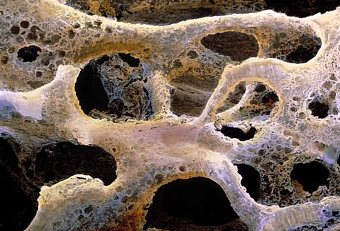 Ca urmare a osteoporozei, oasele formeaza o structura poroasa anormala, compresibila, ca un burete