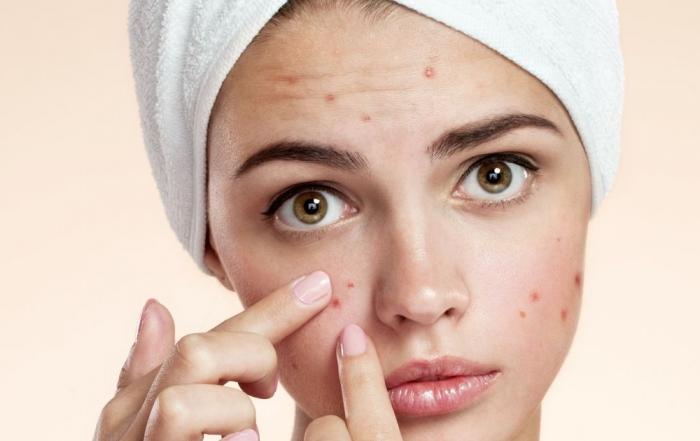 acneea-nu-este-o-infectie-si-nici-o-boala-rezervata-tinerilor