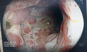 boala Crohn M 42 ani