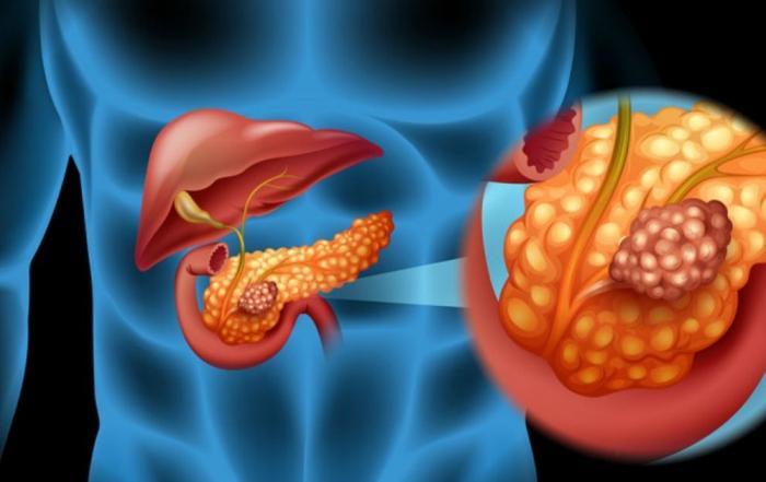 cancerul-de-pancreas