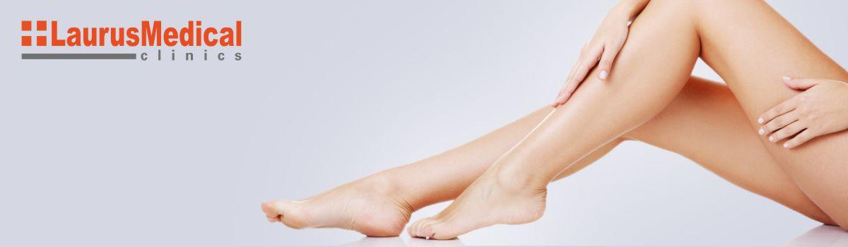 varicoză durere și gravitate în picioare