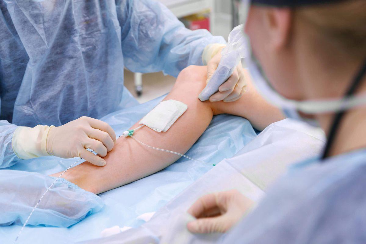 efectele secundare ale tratamentului cu laser varico